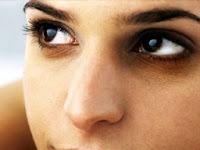 Cara Mencegah Kantung Mata