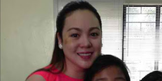 Claudine bruised face photo on Instagram,Claudine,Claudine Barretto