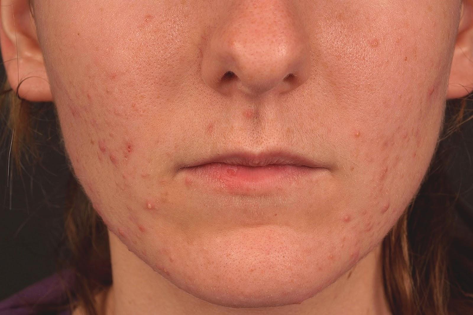 acne vulgaris dermnet nz - HD1600×1066