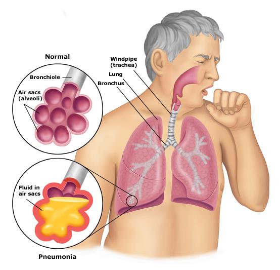 Image Obat kanker paru-paru herbal terbaik