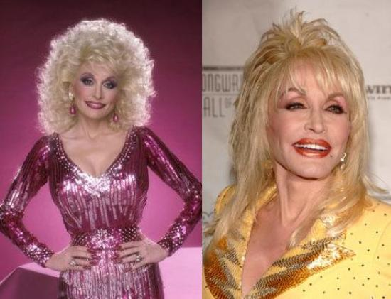 Chatter busy dolly parton facelift according to dr grossman he rejuvenated dollys face multiple times but he reveals that dolly has not had a full facelift publicscrutiny Choice Image