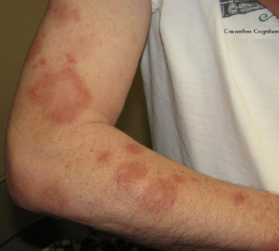Pityriasis Rosea - Treatment - NHS Choices