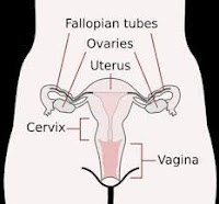 penyebab dan jenis kista ovarium