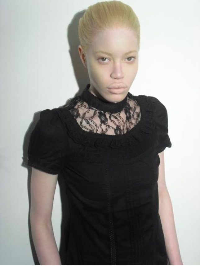 Hot Albino Women http://dawnalee-becauseitmatters.blogspot.com/2011/04/images.html