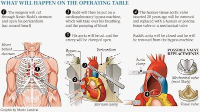 proses pembedahan jantung