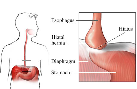 Pathology Outlines - Hiatal hernia