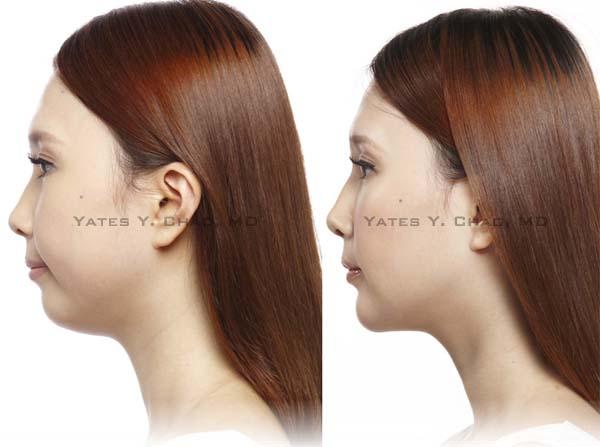 晶亮瓷, 微晶瓷, 下巴塑形, Radiesse Chin Augmentation, Yates Y. Chao, 趙彥宇