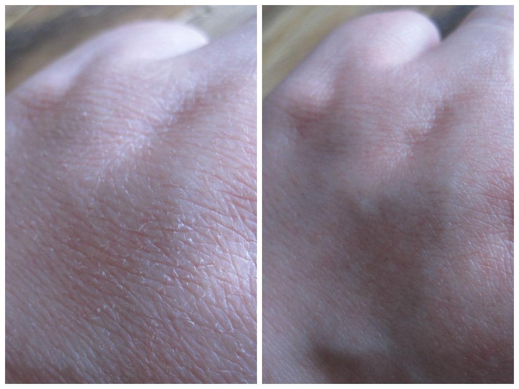 efekty, przed i po, skuteczne do rąk, wygląd dłoni, jak poprawić wygląd dłoni