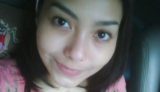 Perjuangan Almarhum Cecillia Vickend Lawan Kanker Lidah