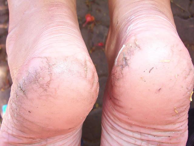 cracked heel