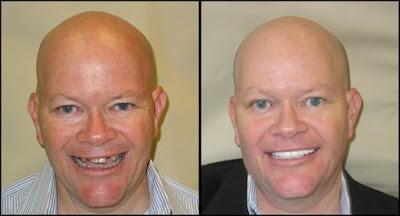harga implan gigi contoh sebelum dan sesudah implant gigi