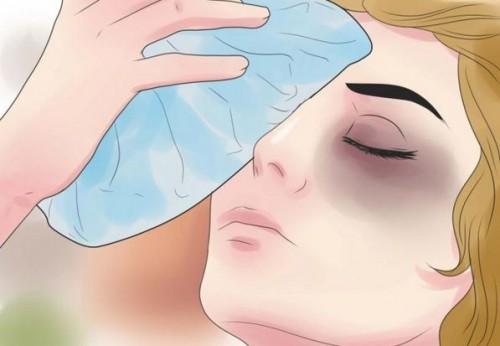 Mẹo hay loại bỏ vết thâm quầng mắt cực nhanh