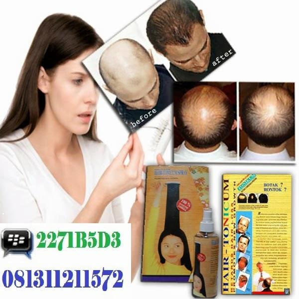 Obat Penumbuh Rambut Alami - newhairstylesformen2014.com