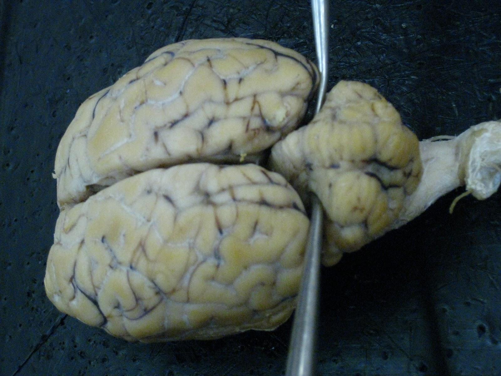 Sheep for Brains: Sheep Brain - External gross anatomy