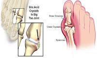 Pengertian penyakit asam urat secara medis adalah penyakit yang diakibatkan oleh penumpukan kristal-kristal asam urat pada persendian yang berasal dari kelebihan kadar asam urat dalam darah. Ini juga bisa disebabkan karena proses yang tidak seimbang dari ginjal.