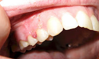 Treatment of dental cysts folk remedies