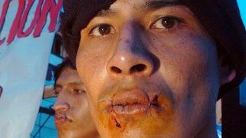 huelga de hambre. cosiéndose la boca extrema protesta