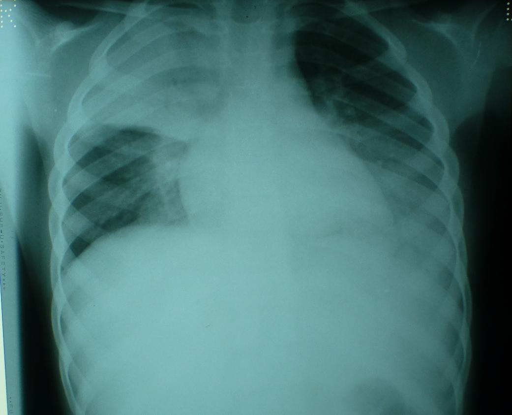 probable TB
