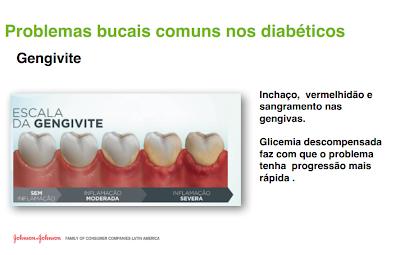 gengivite, diabetes, doenças comuns