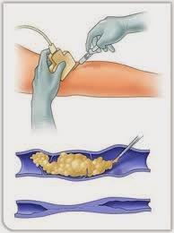 A aplicação de espuma na veia safena e varizes maiores deve ser realizada com ajuda do ultrassom