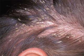 Bệnh viêm da đầu tiết bã – Đơn giản nhưng khó chữa