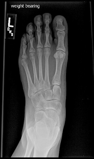 is a nondisplaced 4th metatarsal base fracture and a lisfranc fracture -1.bp.blogspot.com