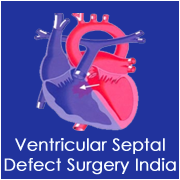 Ventricular Assist Device Surgery India