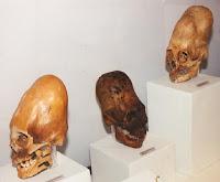 Crânio Alongado