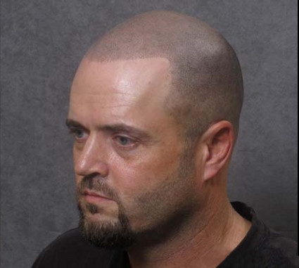 D e c e p t o l o g y how to cure baldness with a tattoo for Head tattoo hairline
