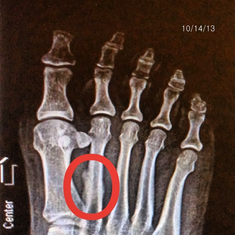 weeks afterward. X-ray shows bone callus forming around the fracture