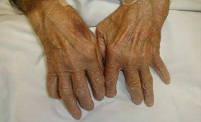 Artritis ósea y artrítis reumatoide