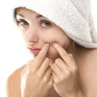 How to get rid of acne scars in your face?
