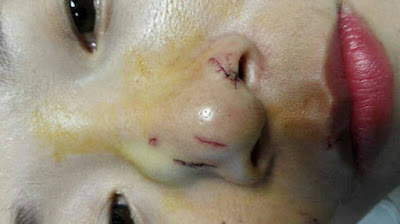 Chinese tourist received stitches