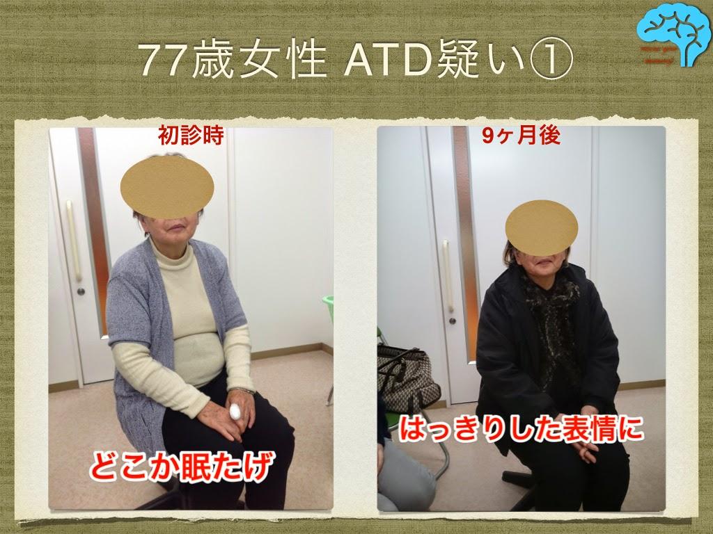 77歳女性のアルツハイマー型認知症。ココナッツオイル有効。表情に変化有り。
