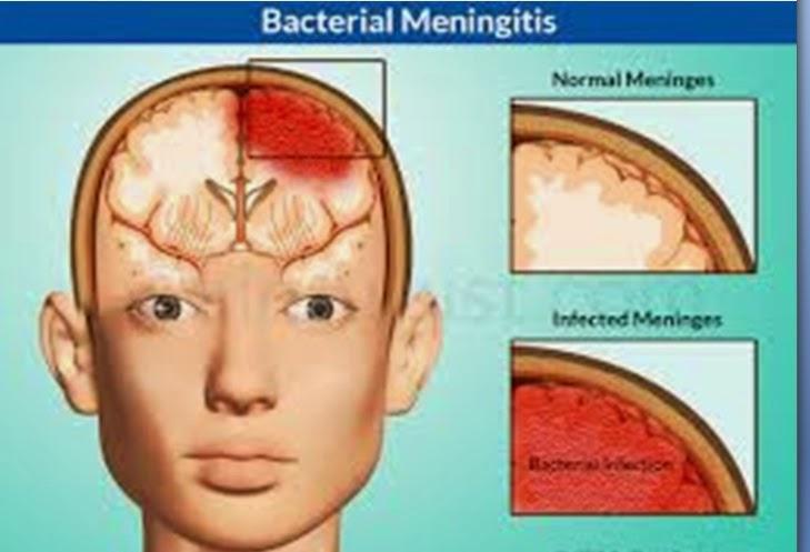 Manfaat Susu Haji Sehat untuk penderita Meningitis