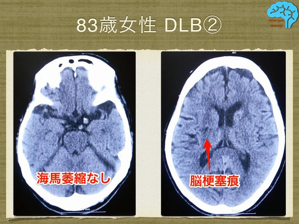 CTでは脳梗塞痕以外に目立った所見なし