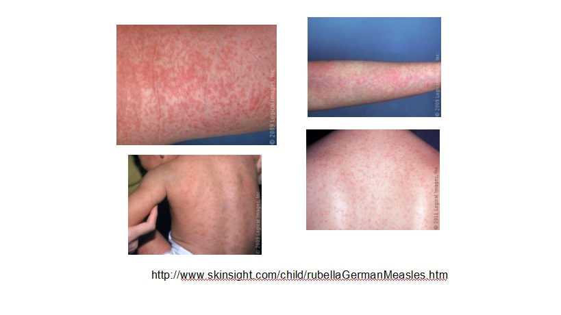 Febra de grad scazut durere scazuta a spatelui