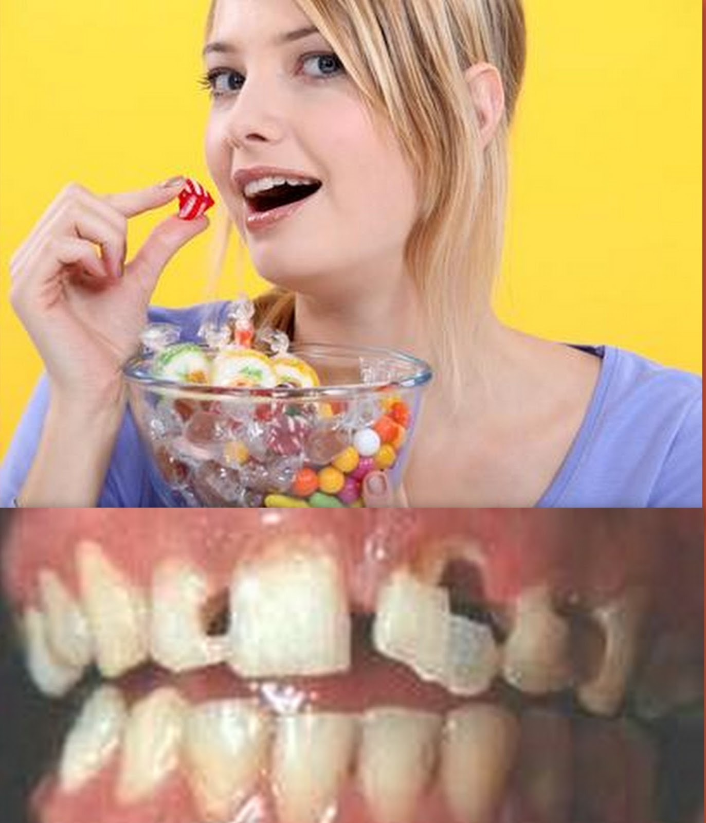 Sorbitol Dental Caries