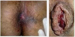 Gambar Untuk Penyakit Ambeien
