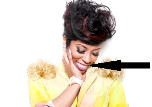 K Michelle Teeth Before and After K Michelle Before And After Teeth