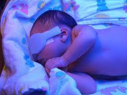 bayi mengalami jaundis