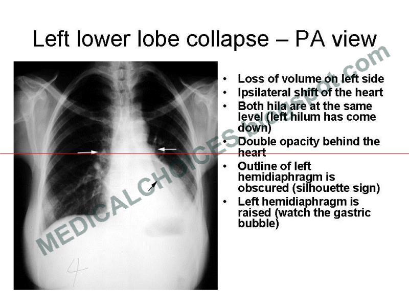 Tension Pneumothorax x Ray Mediastinal Mass x Ray Tension