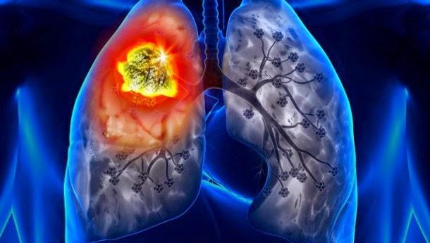 Cuba tem uma vacina contra o cancro do pulmão