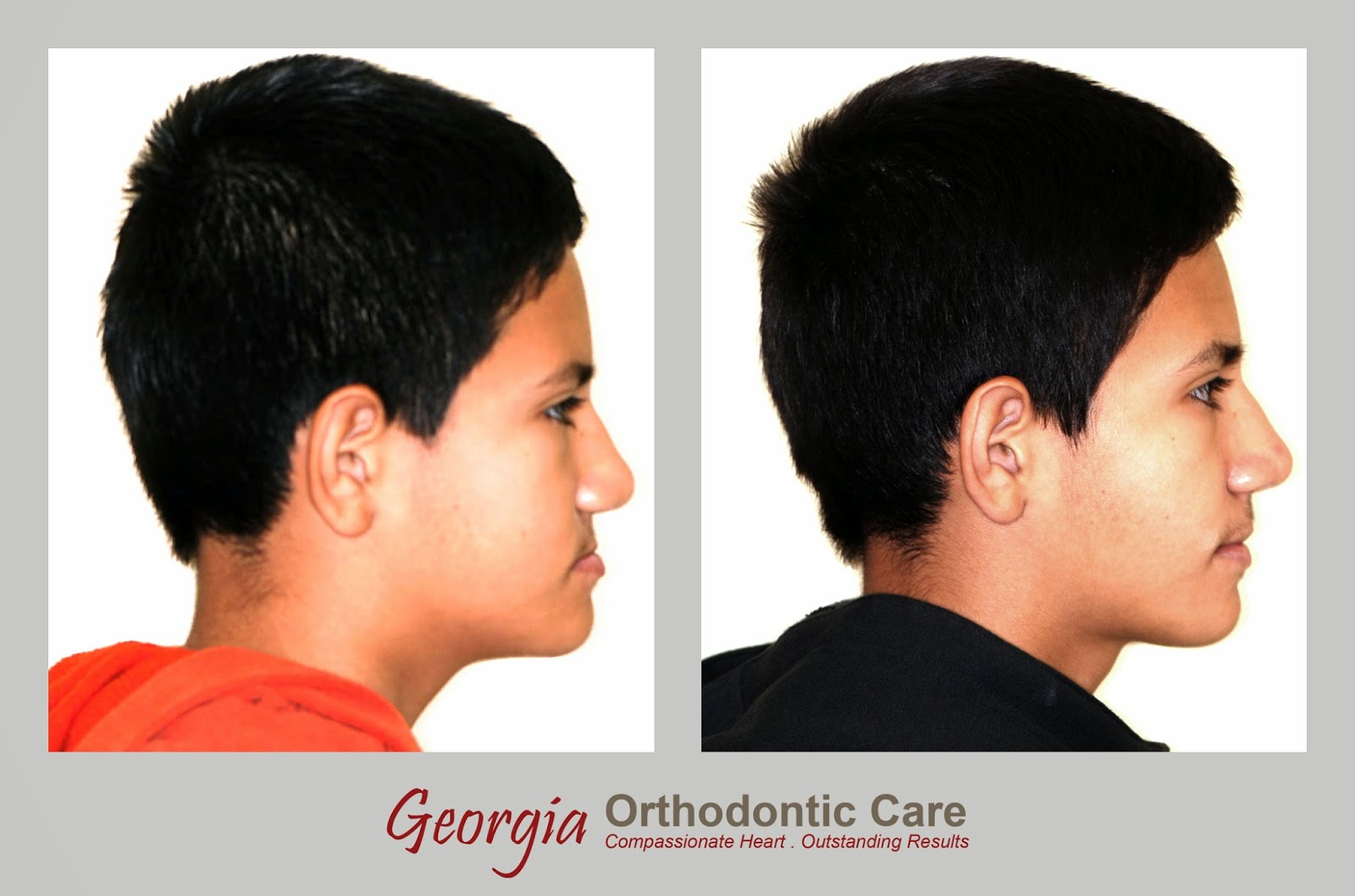 Facial profile, Under bite treatment, class III treatment, Lawrenceville orthodontist, Norcross orthodontist, Gwinnett orthodontist, orthodontists, orthodontics, under bite, over bite, Georgia Orthodontic Care, Dr Nguyen, Cosmetic, Implant, Children, Family, Dentists, Clear, Braces, Invisible, Adults, Teens, Children, Clear Braces, Invisible Braces, Invisalign, Straighten, Teeth, Lawrenceville, Norcross, Buford, Hamilton Mill, Dacula, Auburn, Sugar Hill, Sugar Loaf, Doraville, Chamblee, Stone Mountain, Decatur, Collins Hill, Snellville, Suwanee, Grayson, Lilburn, Duluth, Cumming, Alpharetta, Marietta, Dekalb County, Gwinnett County, Atlanta, North Georgia, GA, Georgia, 30043, 30093