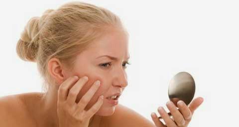 Cara Ampuh Untuk Mencegah Bekas Jerwat di Wajah