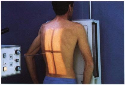 Scoliosis series PA projection