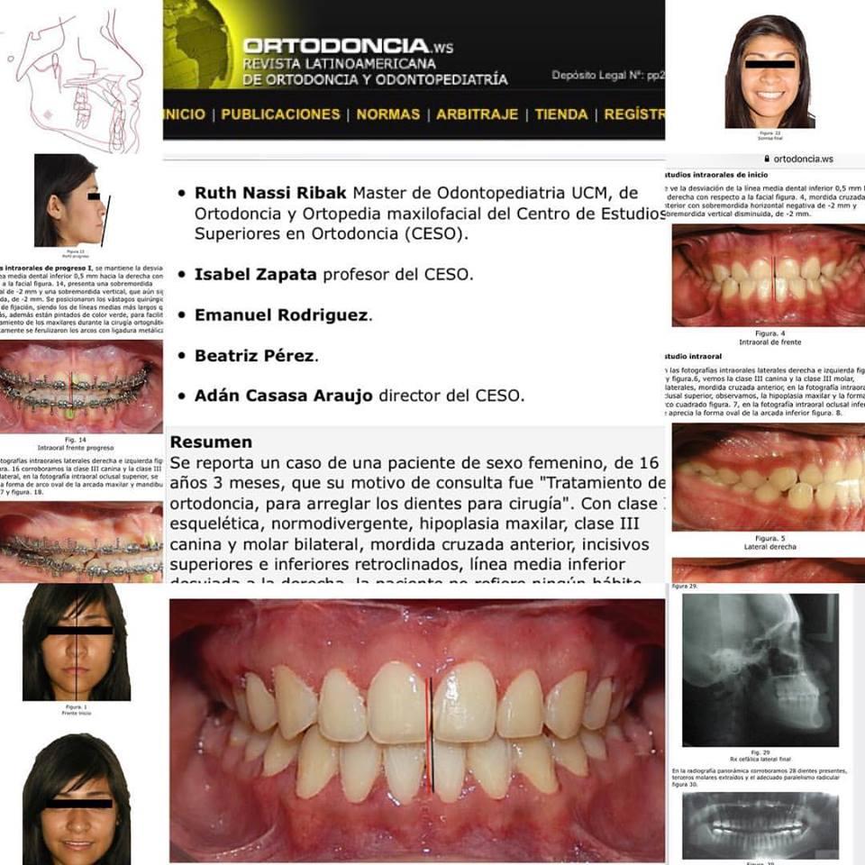Tratamiento Ortodoncico Quirúrgico con Osteotomia Maxilar, Maloclusion Clase III Esquelética.