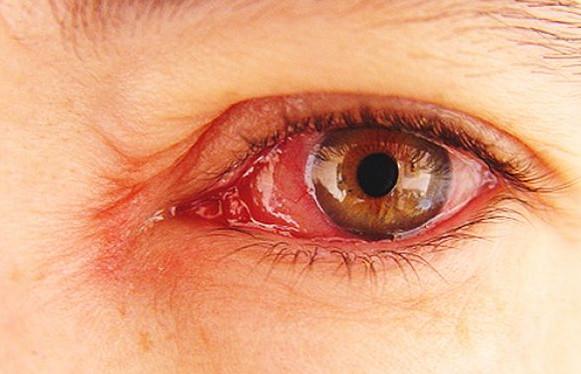 Cara mengobati mata merah secara alami pada bayi/anak dan dewasa