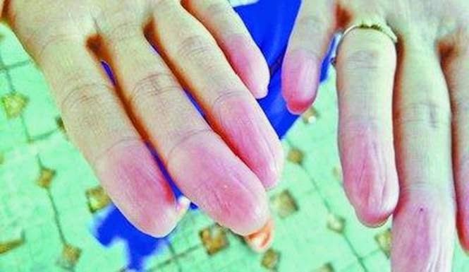 pria tanpa sidik jari