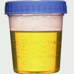 Interpretar exame de urina